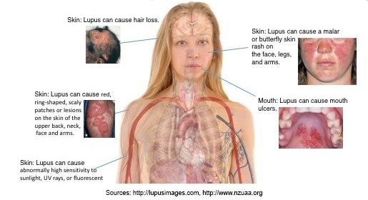 Sunburn Treatment: Photosensitivity, Light Eruption, Tips ...