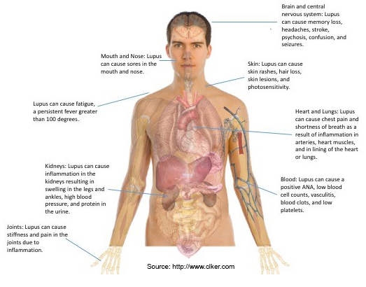 systemic lupus erythematosus sle symptoms Read about the various types of lupus, risk factors, and what drugs can  to  simply as lupus is known as systemic lupus erythematosus or sle.